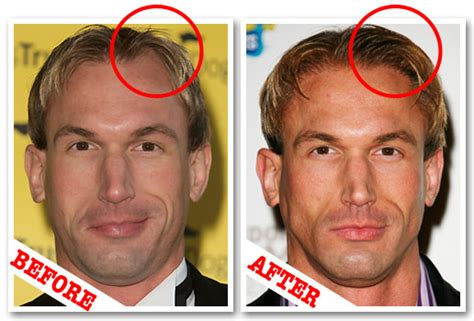Christian Jessen Before And After Plastic Surgery Hair